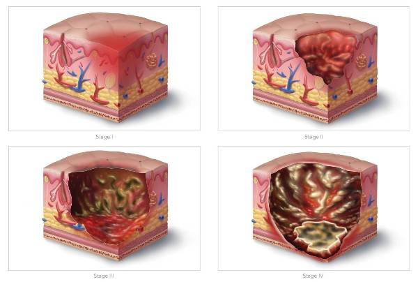 Illustration of Ulcer Development - image courtesy of High Impact